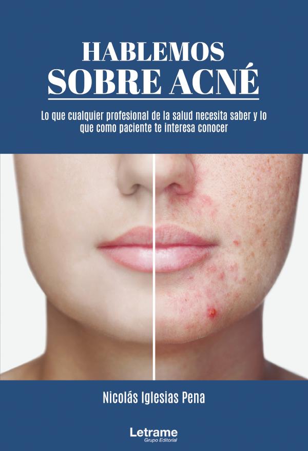 Hablemos sobre acné (Nuevo)